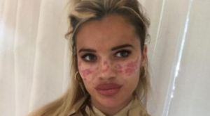 Tilly Whitfield says TikTok freckle trend has caused scarring and vision loss